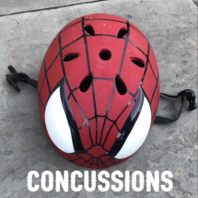 concussions traumatic brain injury and concussion A concussion, sometimes called a mild traumatic brain injury (mtbi), occurs  a  number of methods that they can use to assess the severity of concussions.